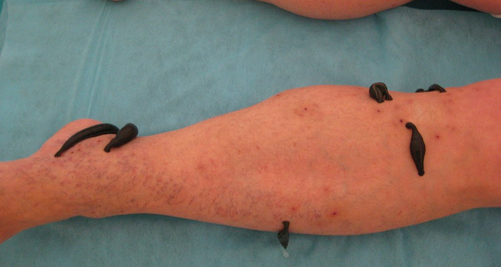 Коксартроз тазобедренного сустава лечение народные средства