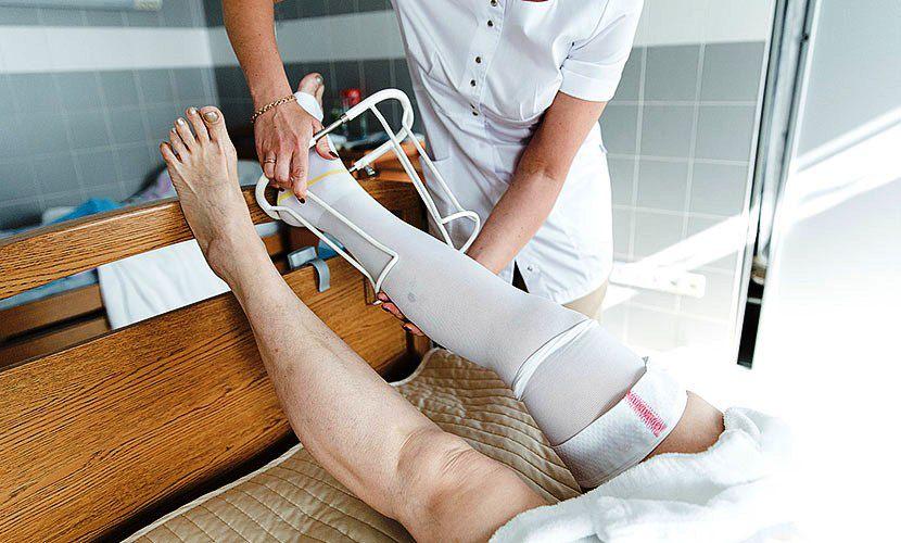 Как избавиться от варикоза на ногах отзывы