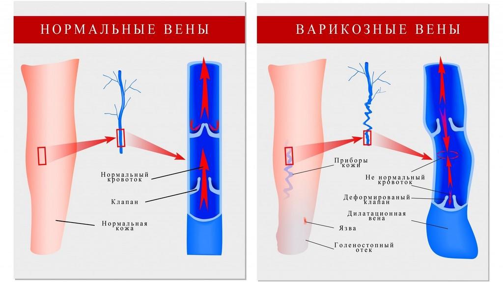 Нарушение кровотока