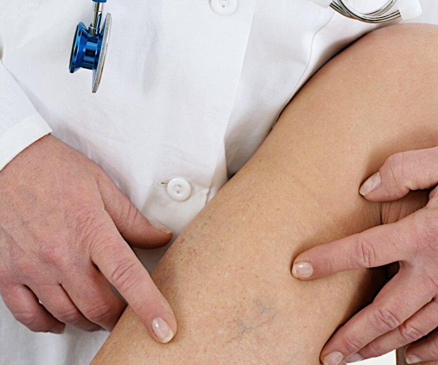 Консультация у медицинского специалиста - флеболога