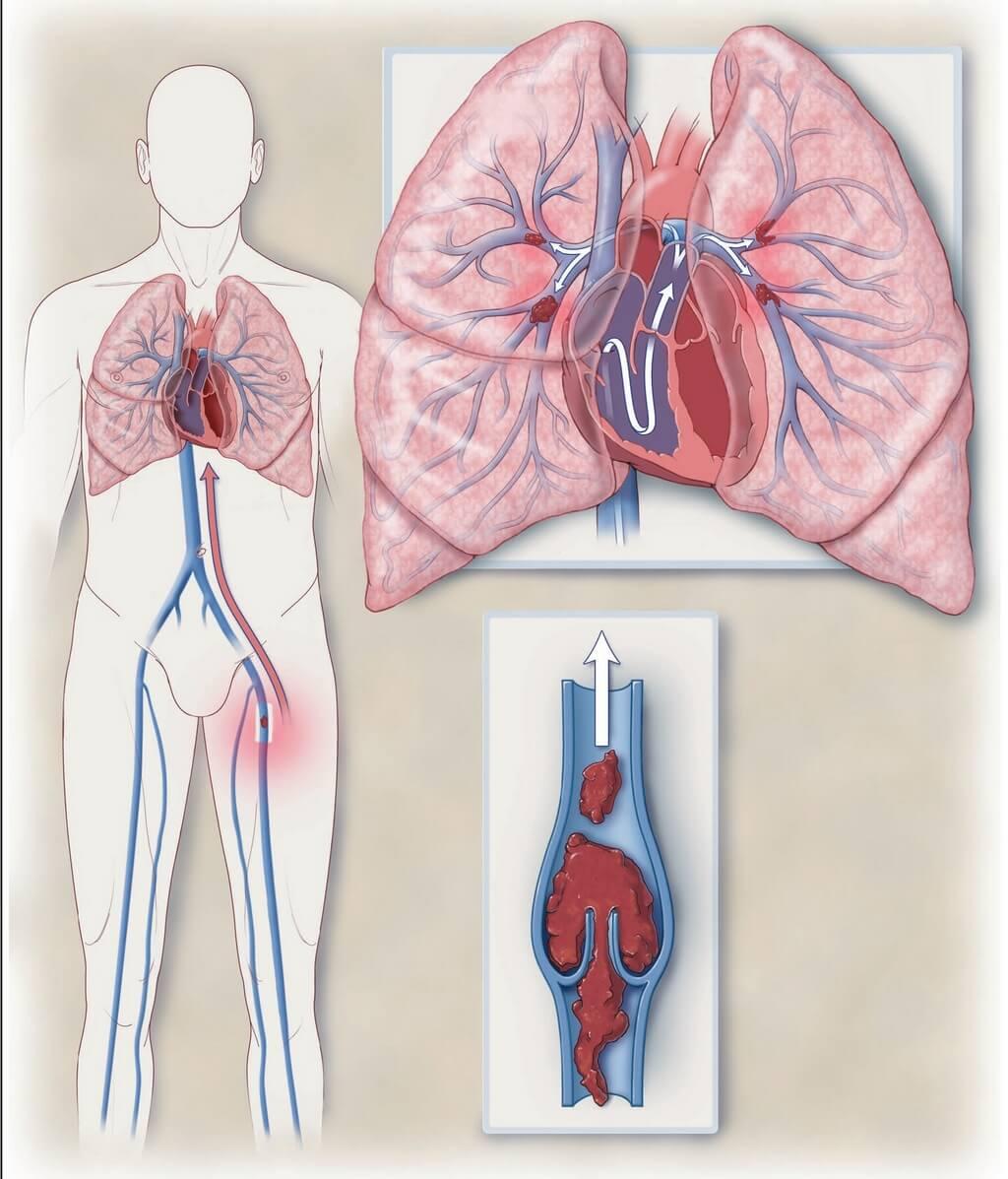 Тромбоз в легких