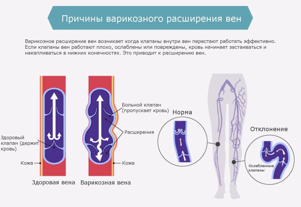 Причины, способствующие развитию варикоза