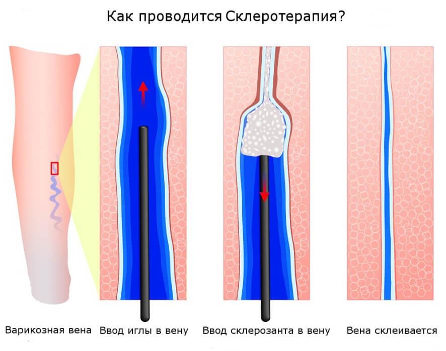 Как проводится склеротерапия