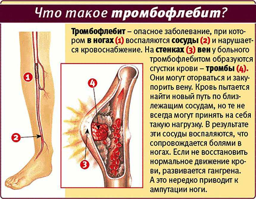 лечение артроза в санатории, санатории подмосковья.
