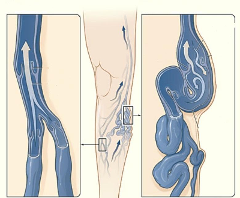 Расширение вен и нарушение циркуляции крови