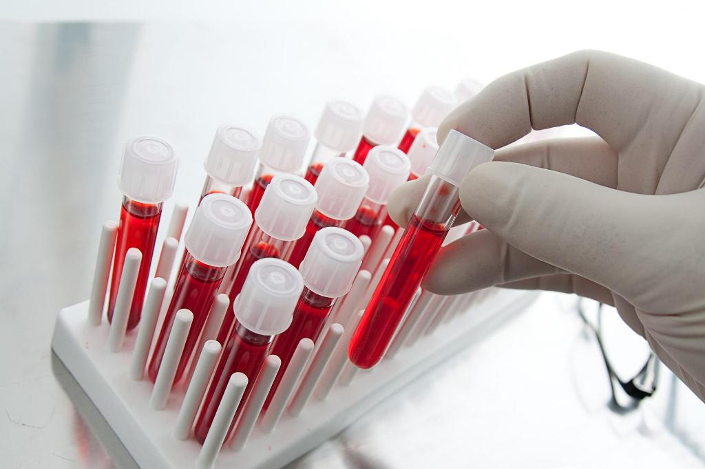 Посев крови в момент резкого повышения температуры