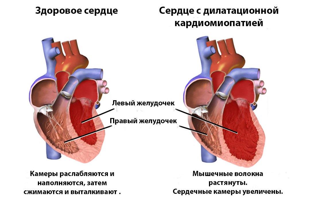 Декомпенсированное расширение сердечных полостей
