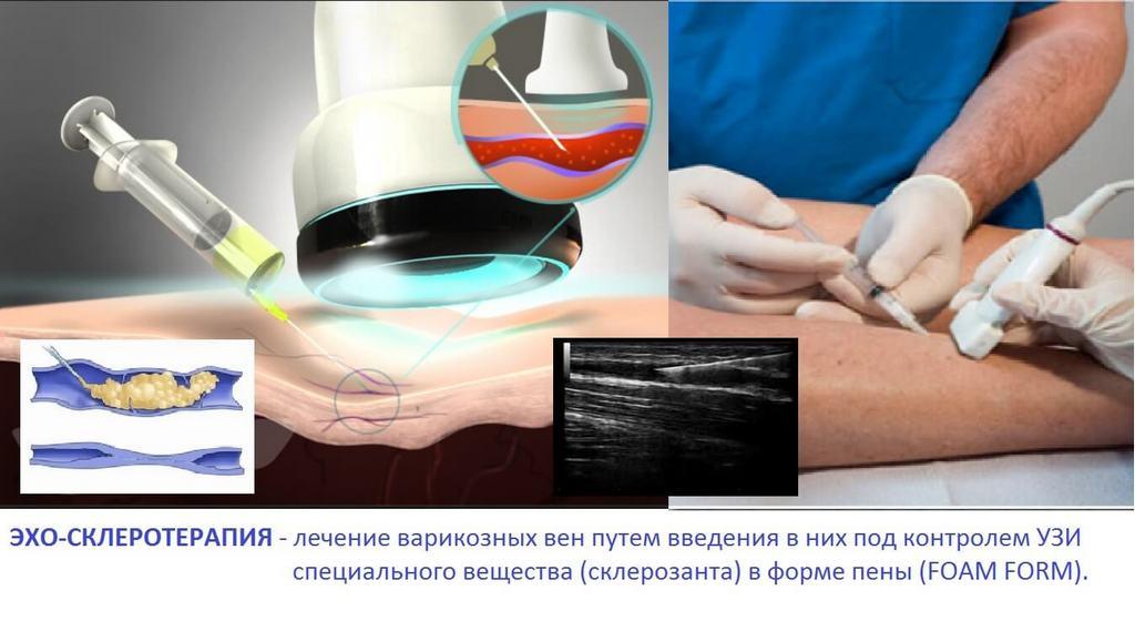 Введение склеропрепарата под УЗ-контролем