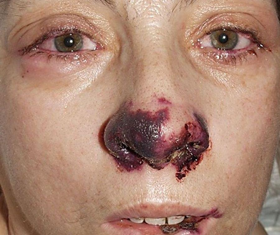 Гранулематоз Вегенера в носу и горле