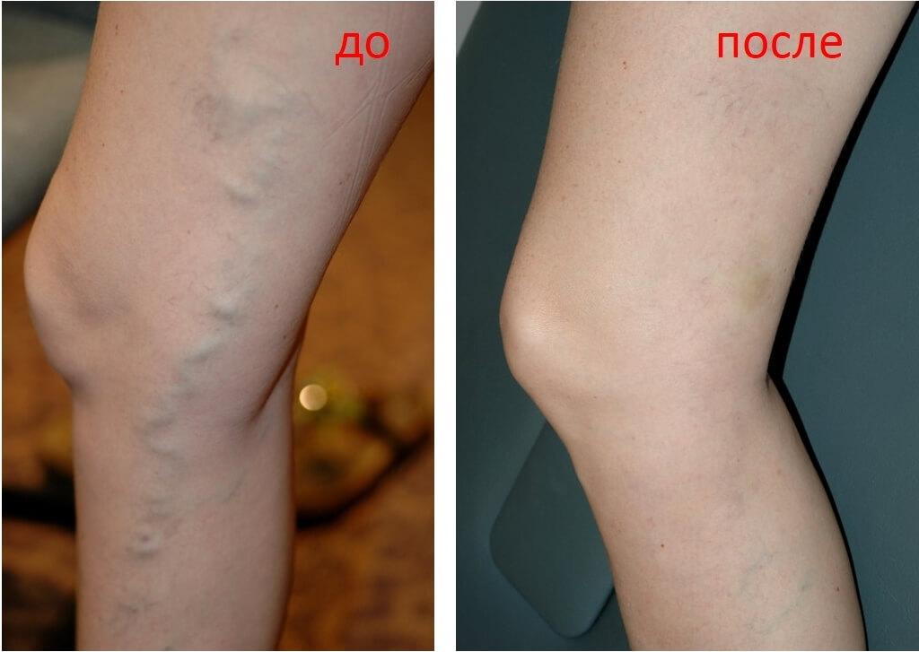 копирует Вас звездочки на ногах лечение отзывы предлагаем огромный