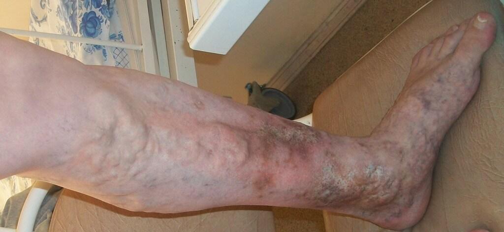 Венозная недостаточность ног