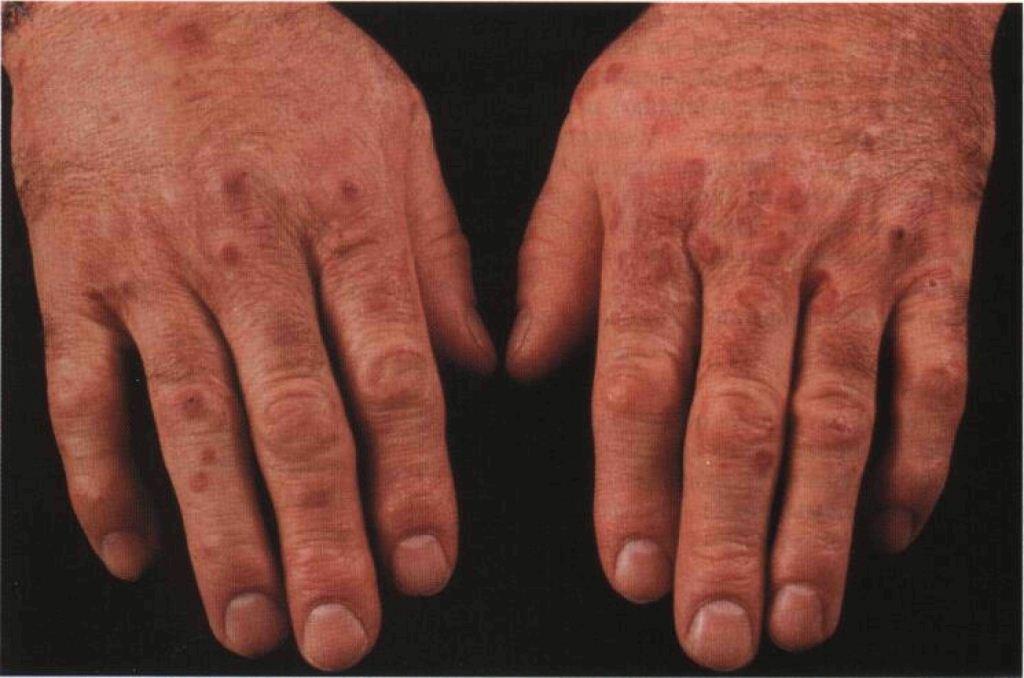 Болезненная красная сыпь на руках при ревматоидному васкулите