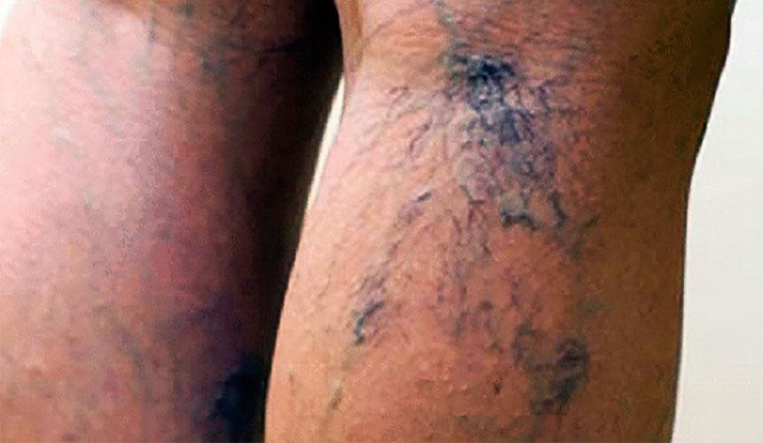 Вздутые вены симптом варикоза