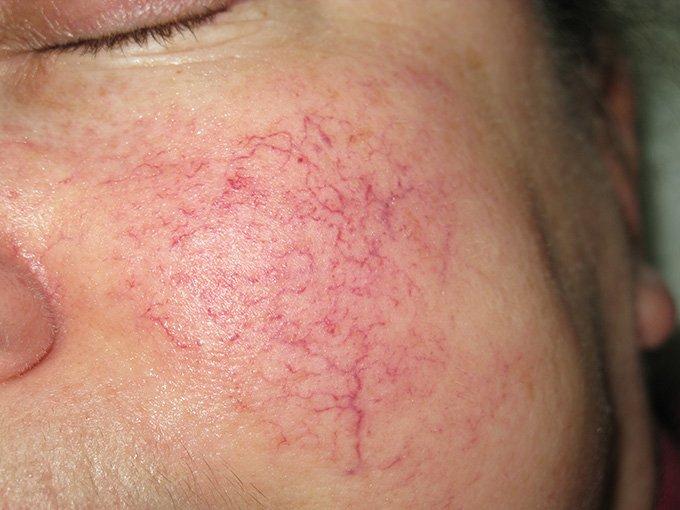 Причины появления капилляров на лице