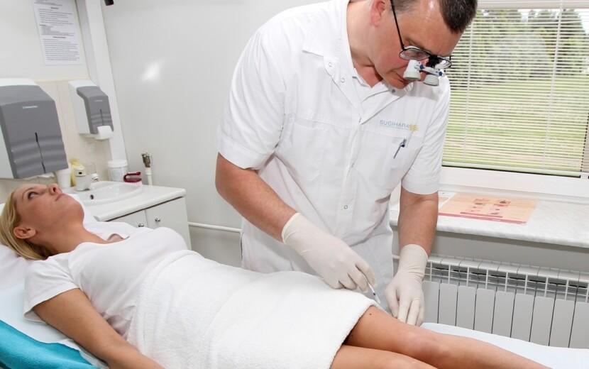 Уколы от варикоза вен на ногах - склеротерапия и ее преимущества