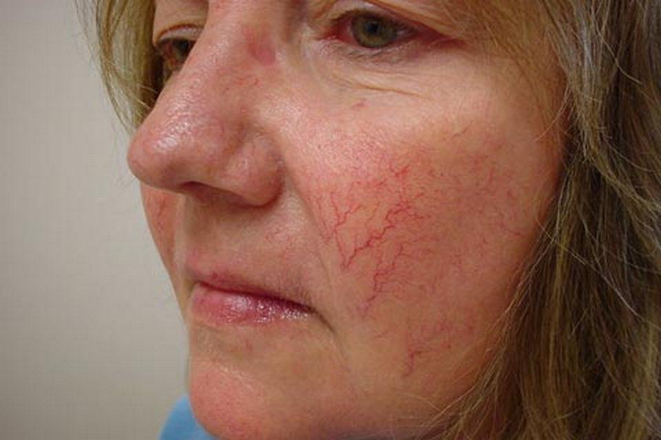 Купероз на лице: методы борьбы - Косметология
