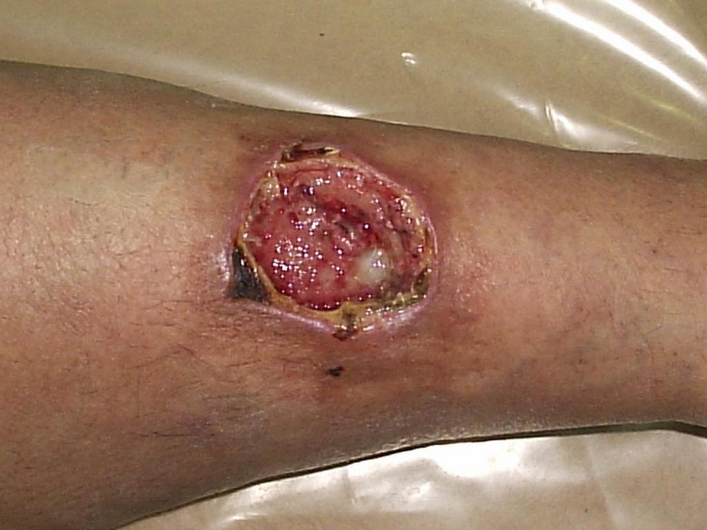 Возможные осложнения при заболевании - трофическая язва