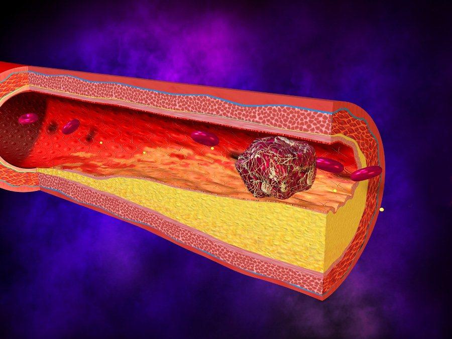 Результат образования тромба