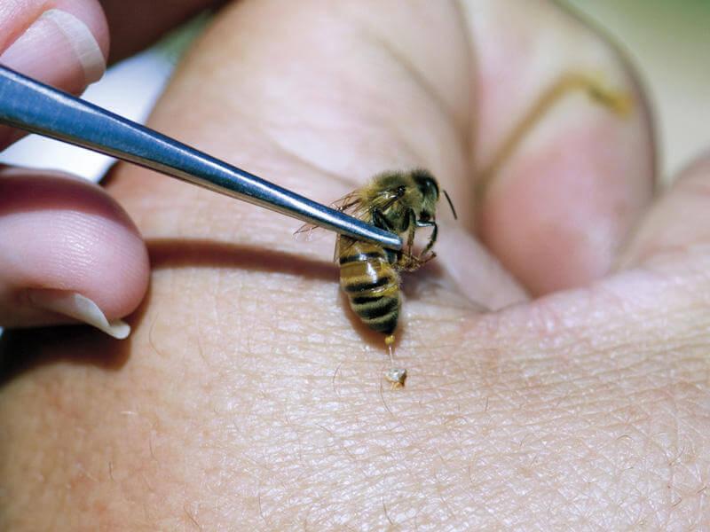 Апитерапия – лечение болезней при помощи пчелиного яда