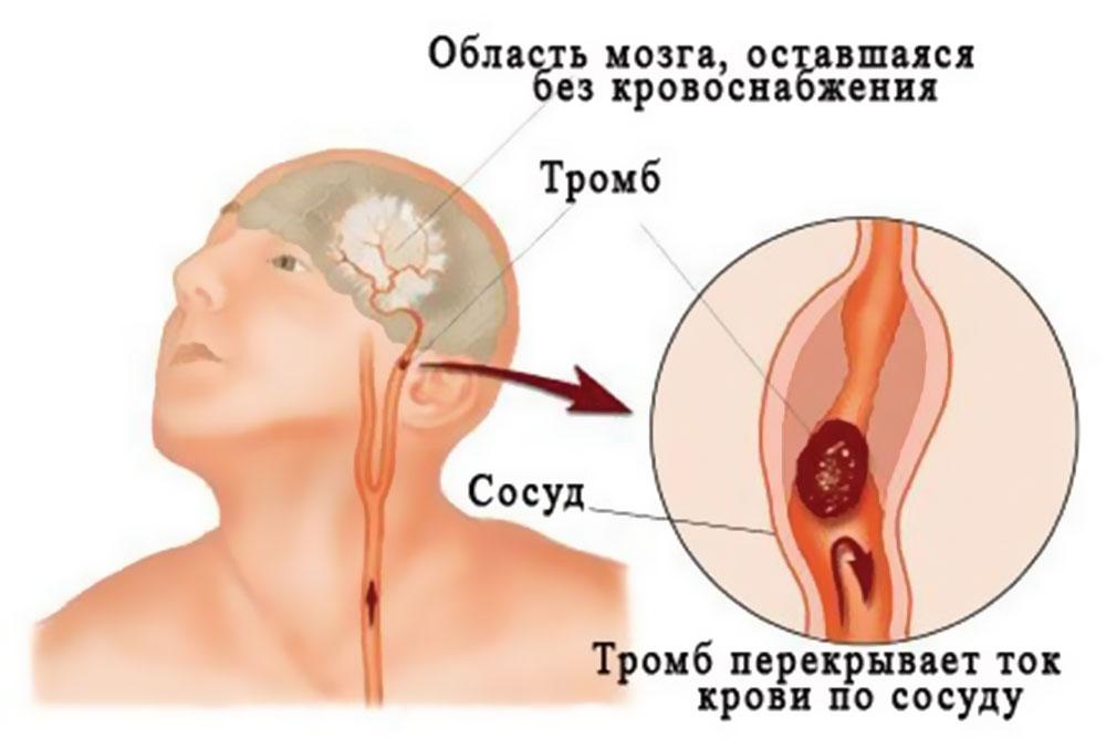 Тромбоз вен головы