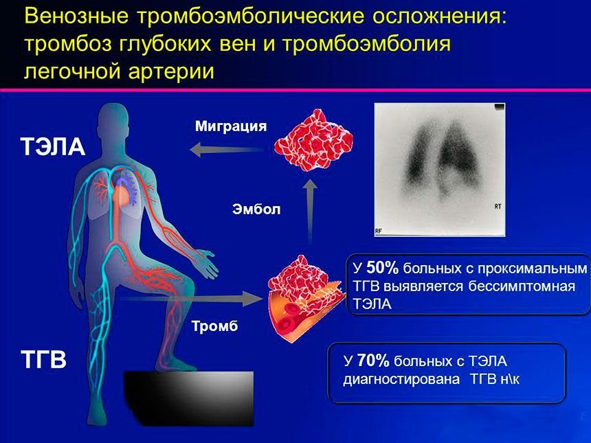 Осложнения тромбофлебита сосудов ног