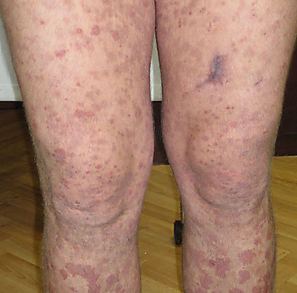 Смешанная криоглобулинемия (криоглобулинемическая пурпура)