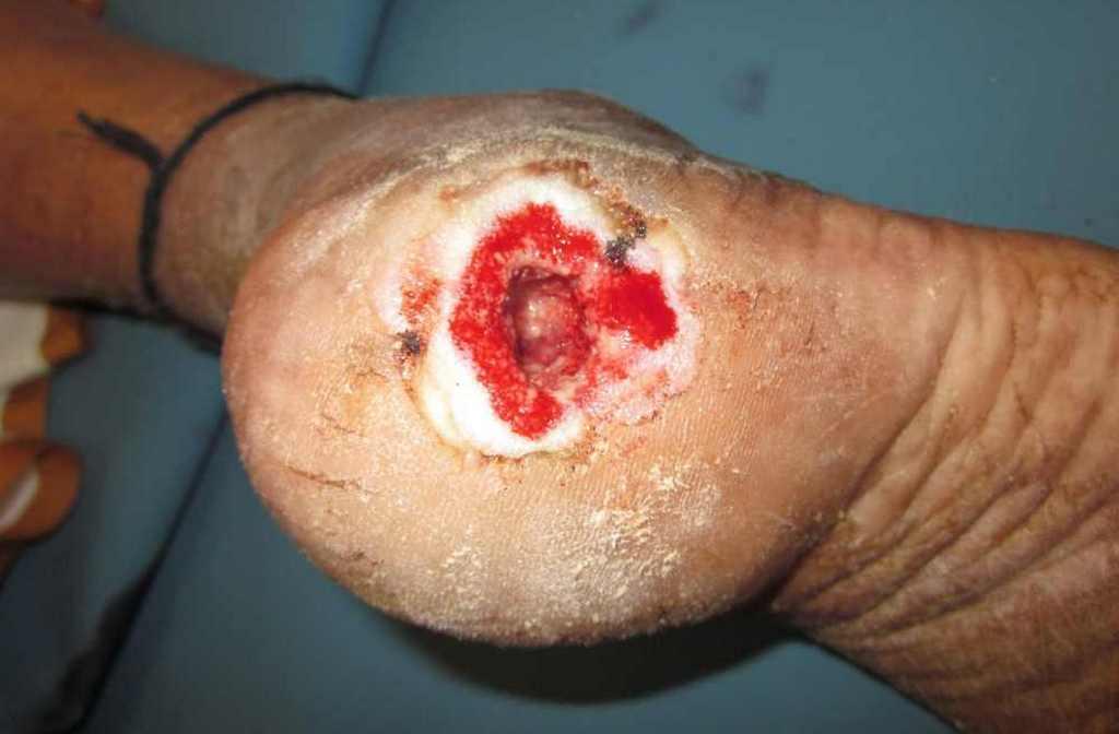 Первые признаки трофической язвы на ноге