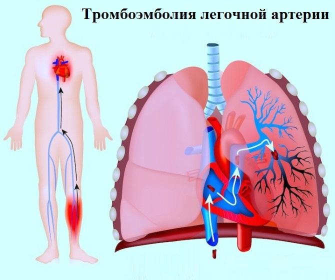 Синдром тромбоэмболии легочной артерии