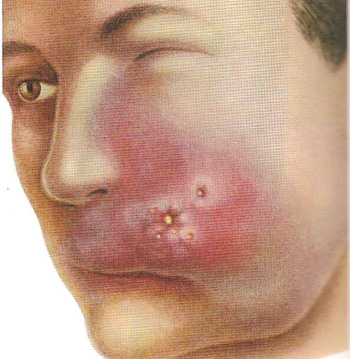 Местные проявления при тромбозе синуса