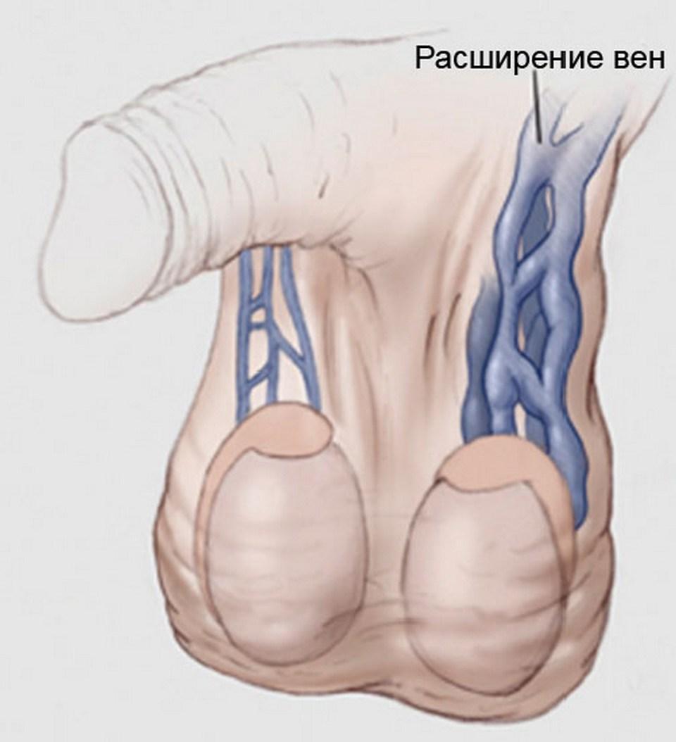 Варикоз вен на ногах лечение, народные средства,