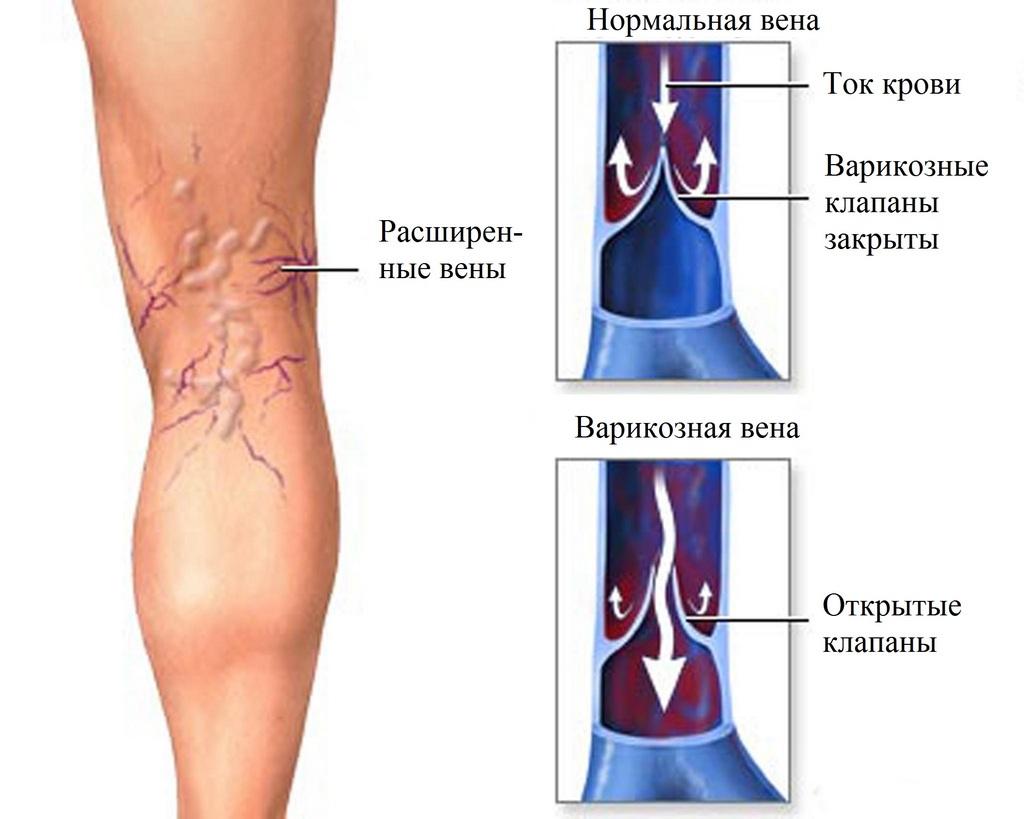 Боли в коленном суставе при варикозе акупунктурные точки тазобедренный сустав сустава