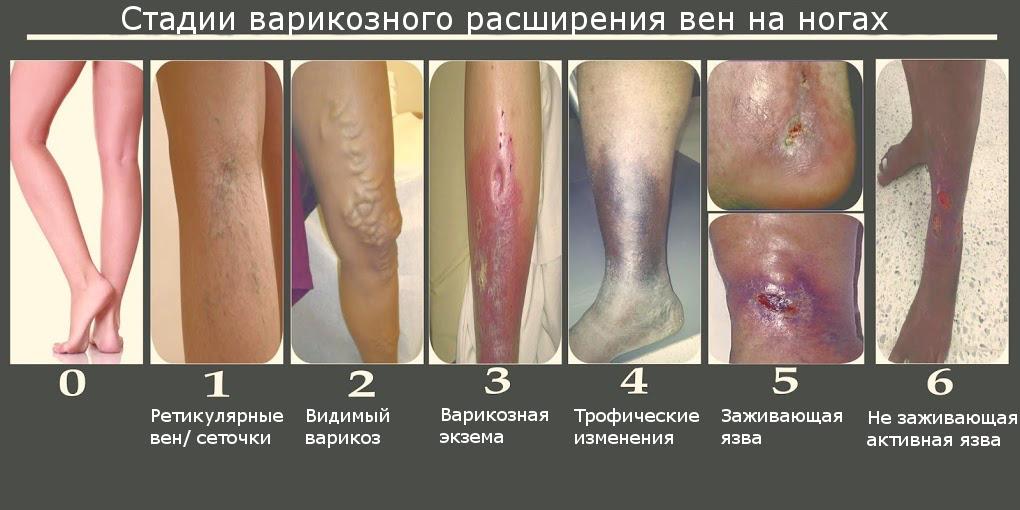 Стадии ВРВ на ногах