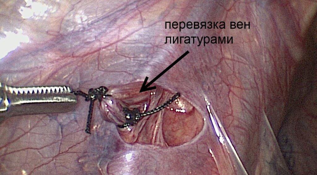 Операция по методу Иванисевича