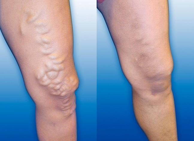 Воздействие венотоников на варикозные вены