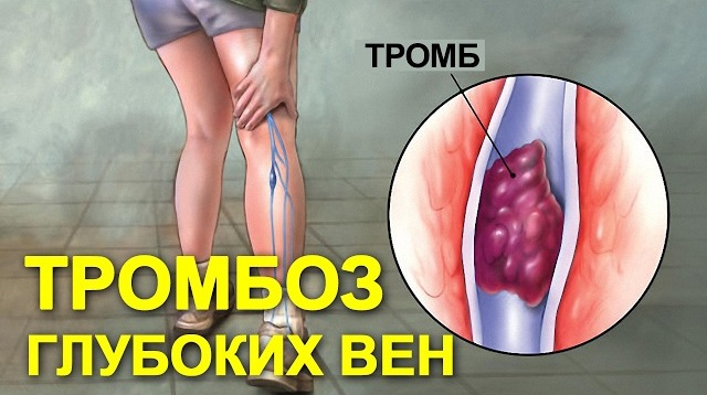 Тромбоз глубоких вен (ТГВ)