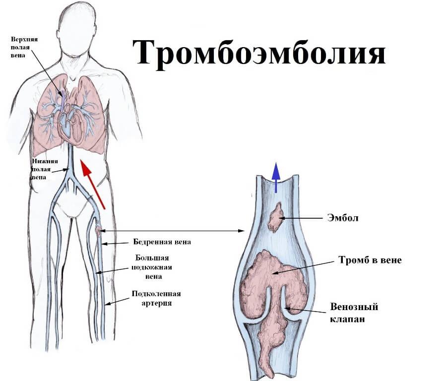 Причины развития тромбоэмболии