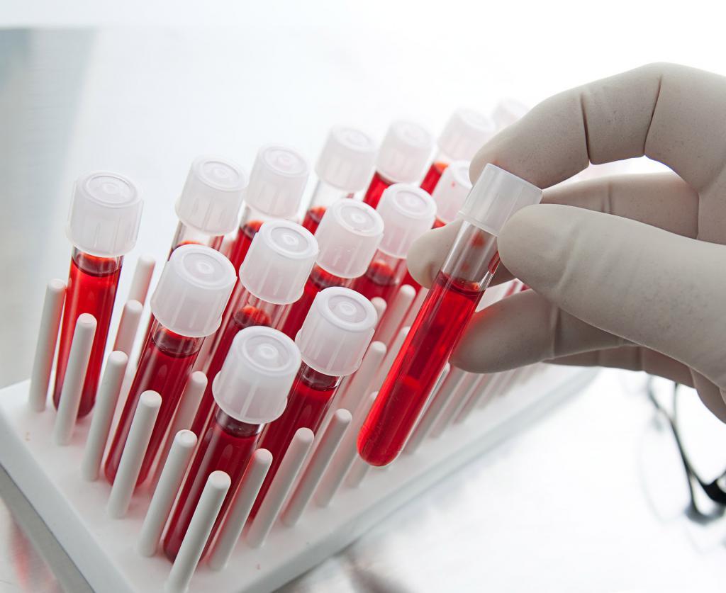 Анализы крови при варикозе