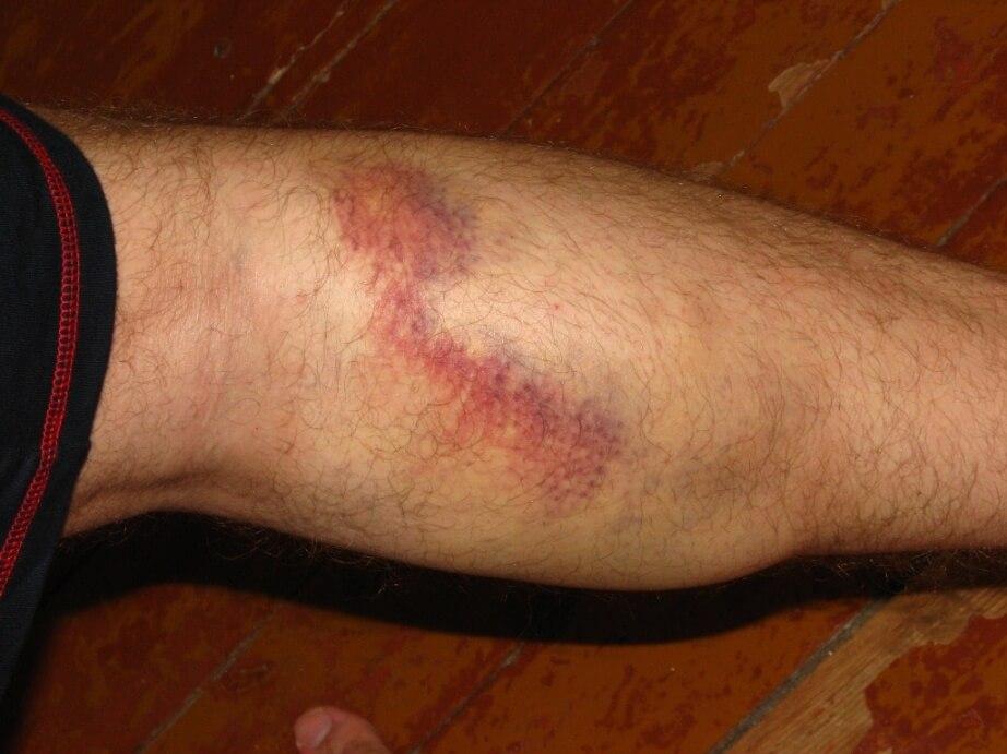 Признак разрыва сосуда на ноге