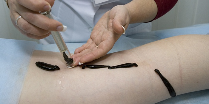 Как применять детралекс при варикозе