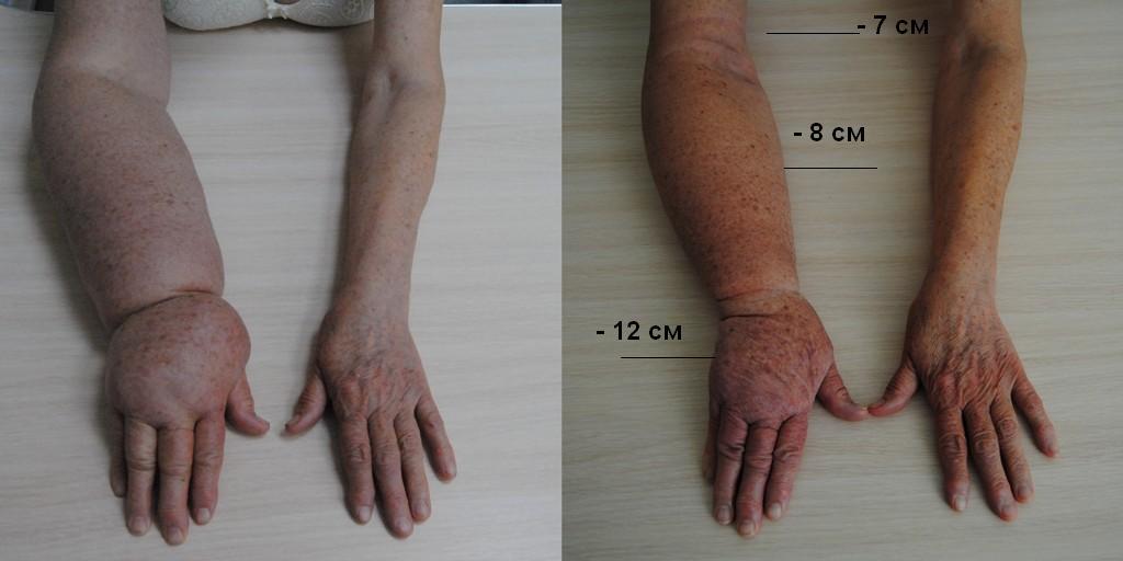 Лечение лимфостаза руки после мастэктомии
