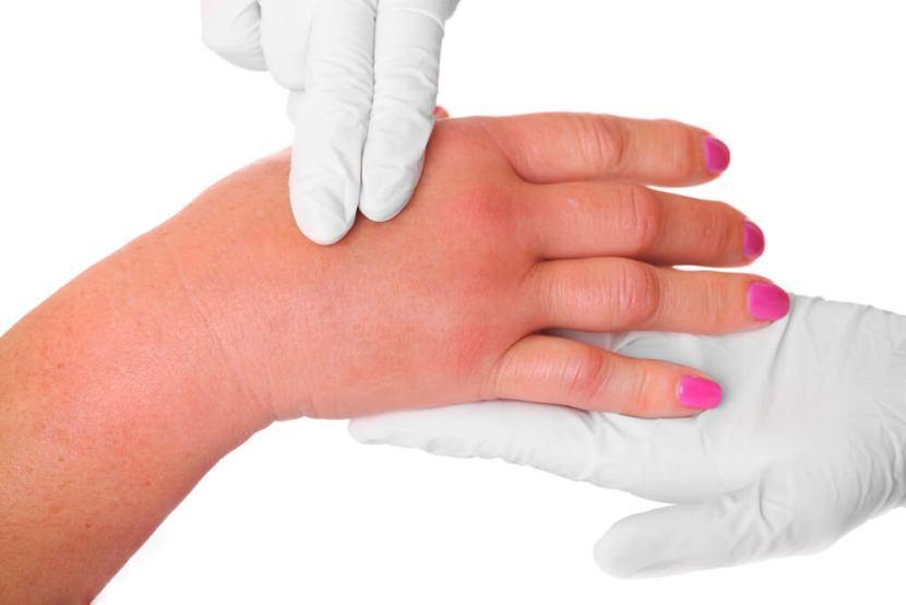 Массаж руки при лимфостазе после мастэктомии - техника проведения