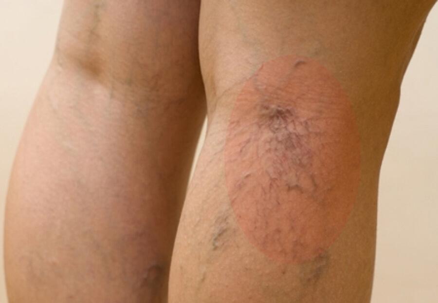 Как выглядит варикоз на ногах?