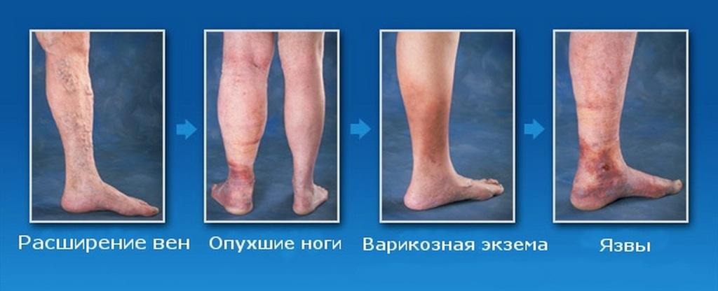 Хорошая может ли при варикозе ног оторваться тром стала главной