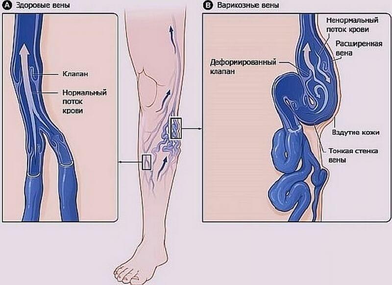 Развитие варикоза ног