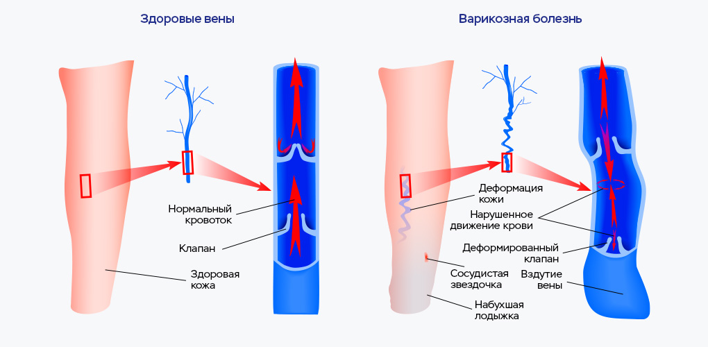Нарушение венозного оттока нижних конечностей