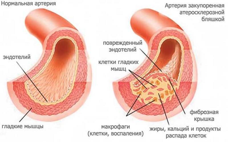 Артерия пораженная холестериновой бляшкой