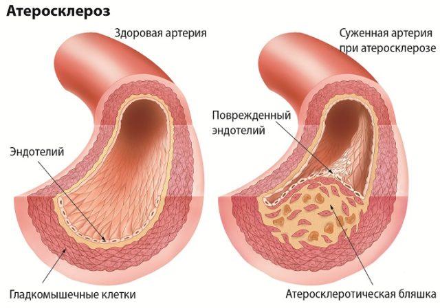 При атеросклерозе происходит поражение артерий во всех органах и тканях организма, на стенках артерий откладываются липиды (жиры, особенно холестерин) и соли кальция