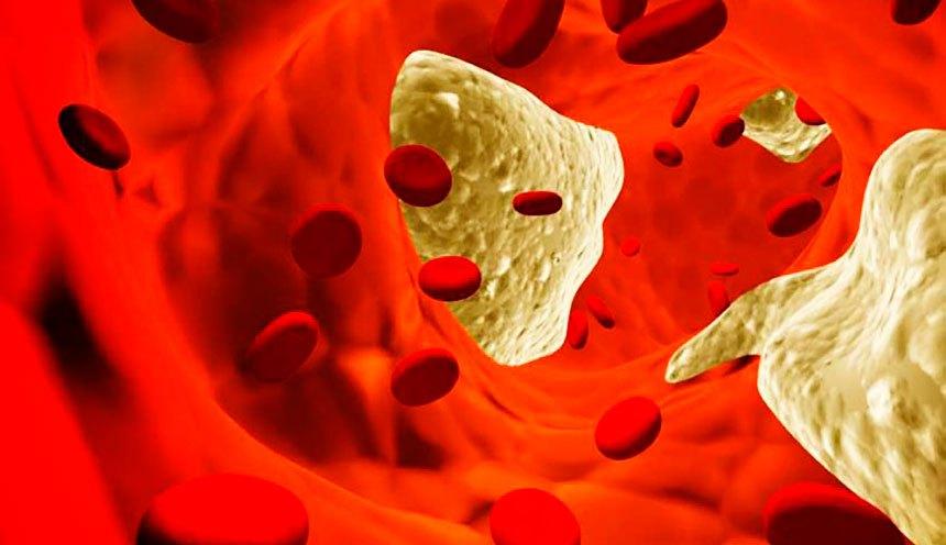 Почему появляется атероскулероз