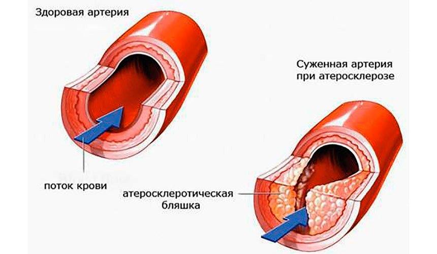 170.2 атеросклероз артерий конечностей
