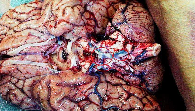 Бляшки при атеросклерозе головного мозга